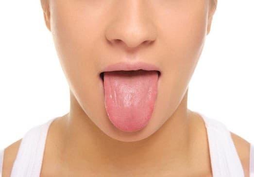 Сухость во рту 2