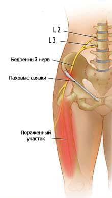 Изображение - Неврит тазобедренного сустава лечение 7859a68ea0ba73c9e4992d6b87ec1310