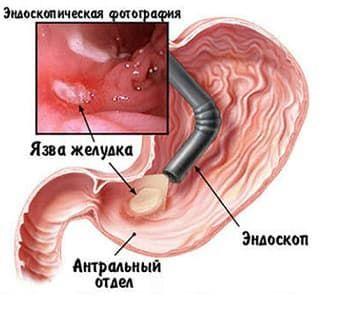 Язва желудка симптомы болезни