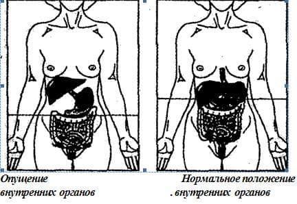 импотенция из за кишечника