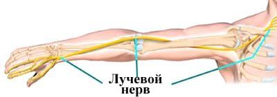 Неврит лучевого нерва