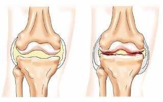 Лечение суставов без операционно сводит тазобедренные суставы