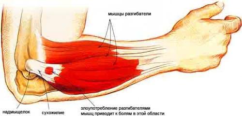 Болит локтевой сустав правой руки. Чем лечить болезнь, рентген, мышцы