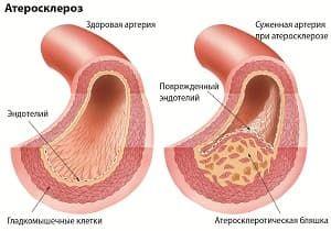 Лечение атеросклероза в клинике Наран