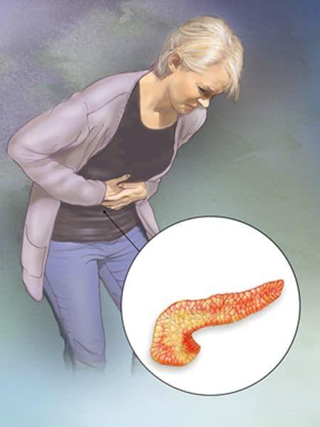 Куда прикладывать холод при панкреатите