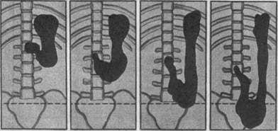 gastroptoz-2.jpg