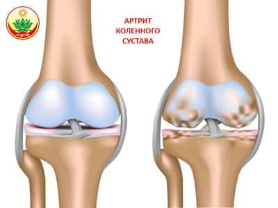 Лечение артрита коленного сустава, лечить колено