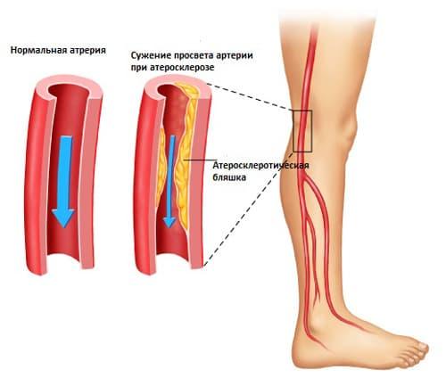 болит колено при разгибании и хрустит лечение