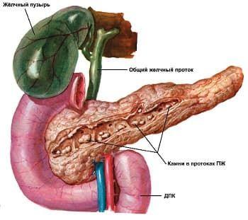 Лечение хронического панкреатита.jpg