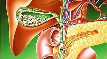 Лечение желчнокаменной болезни, камни в желчном пузыре