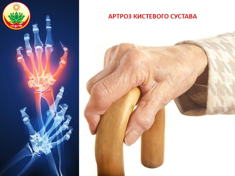 Избавление от боли суставов тибетской медицине мрт тазобедренного сустава г москва