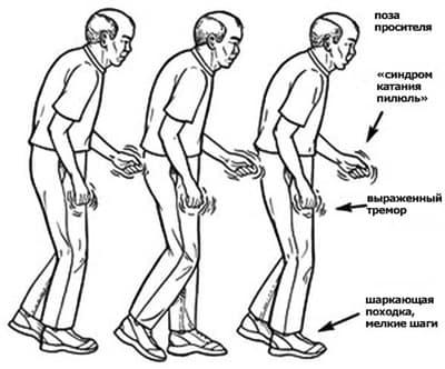 simptomi-parkinsona-400.jpg