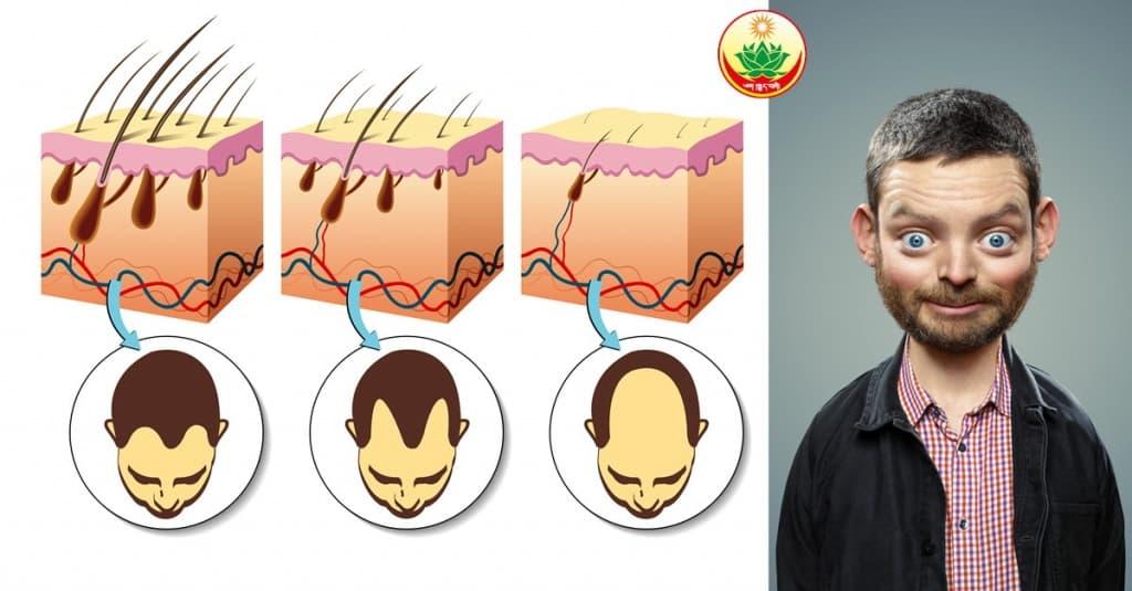 Алопеция. Выпадение волос