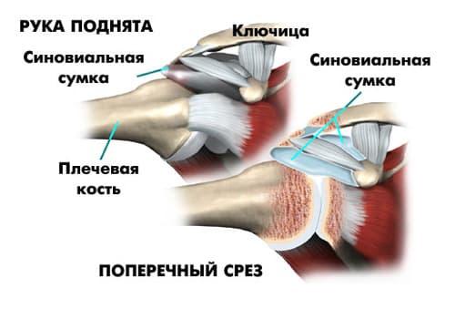 Болит плечо: что делать? - причины, лечение, почему сильно болит ...